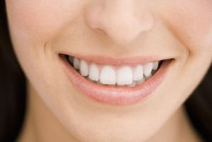 Instruction pour l'utilisation Opalescense Whitener